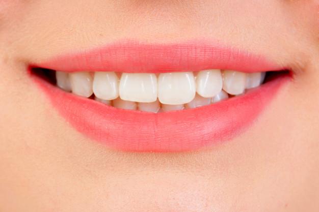 DIY – Dicas para branquear os dentes