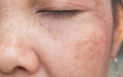 Sinais do envelhecimento da pele