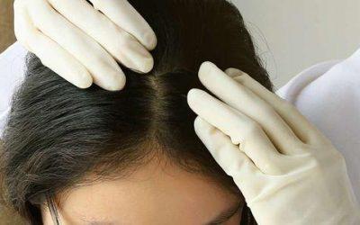 Couro cabeludo seco: o que fazer?