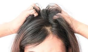 Como tratar o couro cabeludo