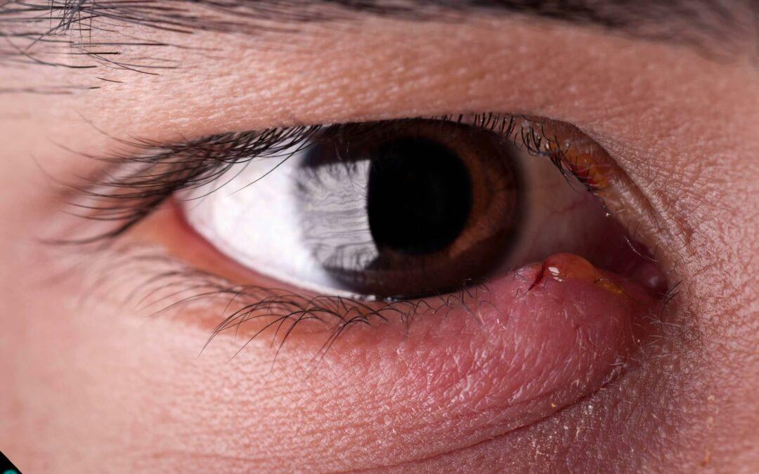 Olhos inchados?